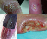 Abordaje de las heridas crónicas basado en el biofilm bacteriano (3ª Edición)