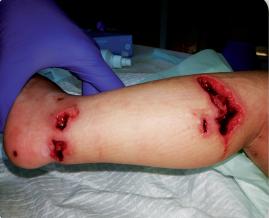 Introducción al abordaje de heridas complejas en pacientes pediátricos (1ª Edición)