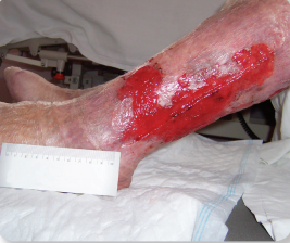 Úlceras de etiología venosa: abordaje y nuevos avances en su cuidado (3ª Edición)