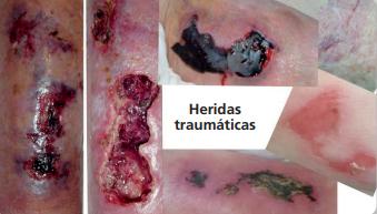 Abordaje de las heridas traumáticas (1ª Edición)